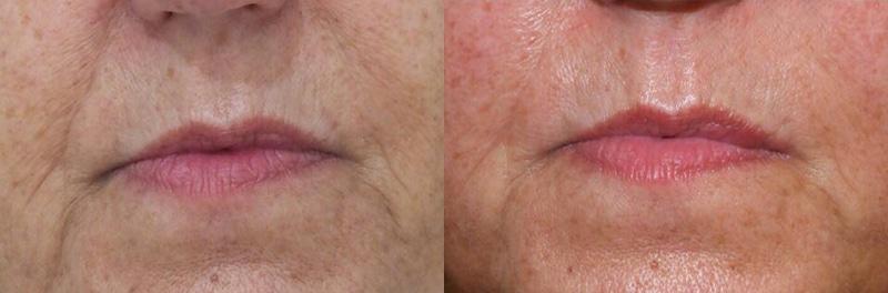 Mejoría de la textura de la piel · Imperium Med400 (I)