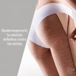 Biodermogenesi®,-la-solución-definitiva-contra-las-estrías