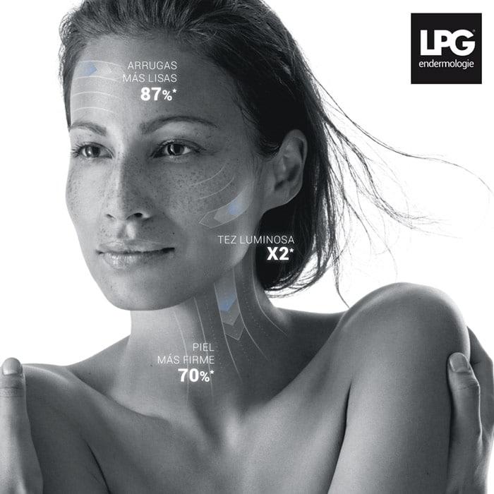 Tratamiento LPG Medical - Tecnología de vanguardia para mejorar arrugas, piel flácida y la grasa resistente.