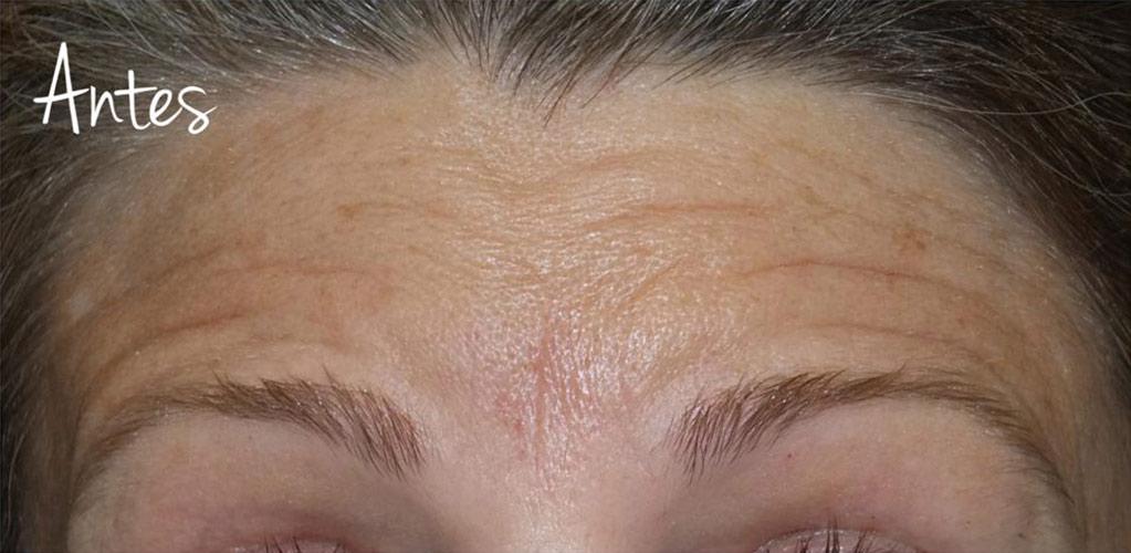 botox-1-antes