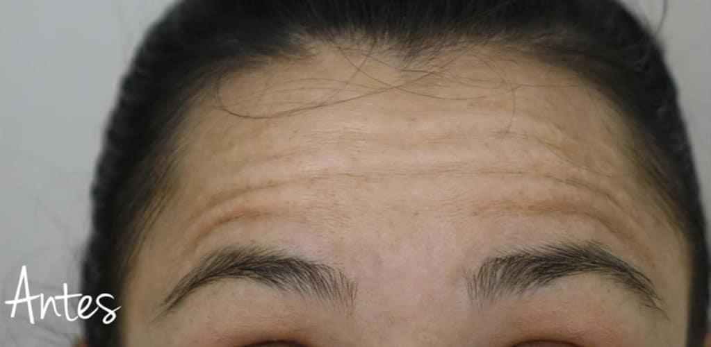 botox-2-antes