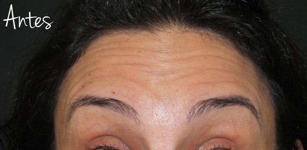 botox-3-antes