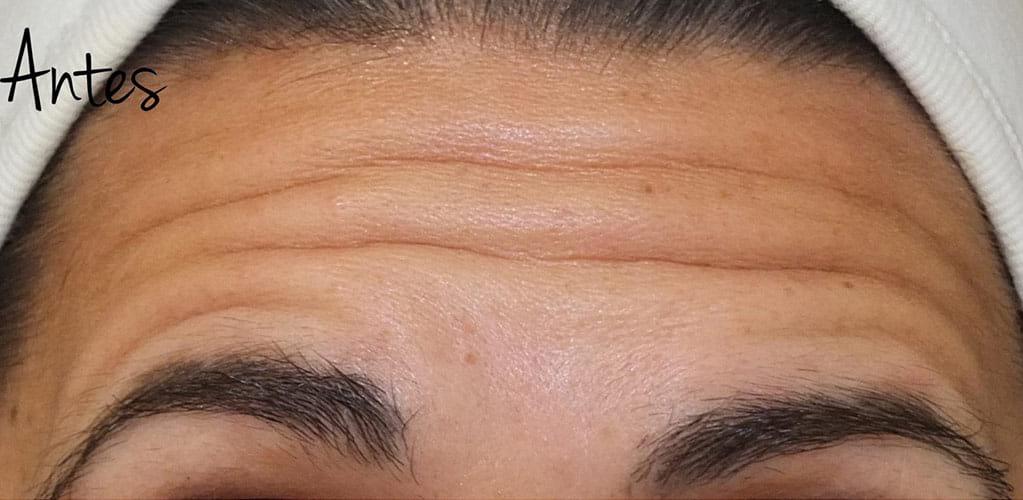 botox-9-antes