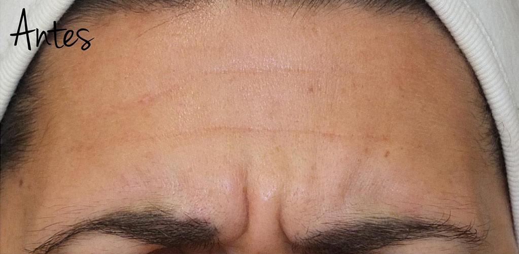 botox-hialuronico-1-antes