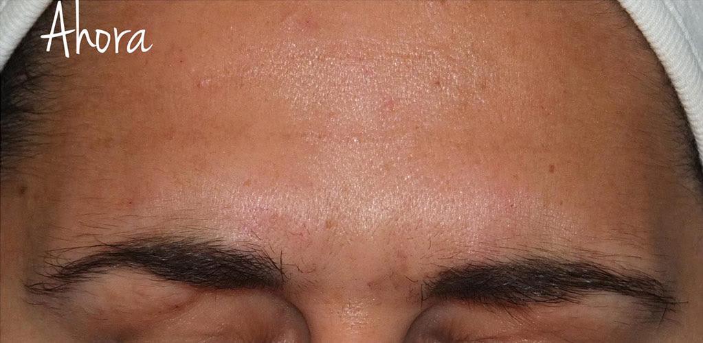 botox-hialuronico-1-despues