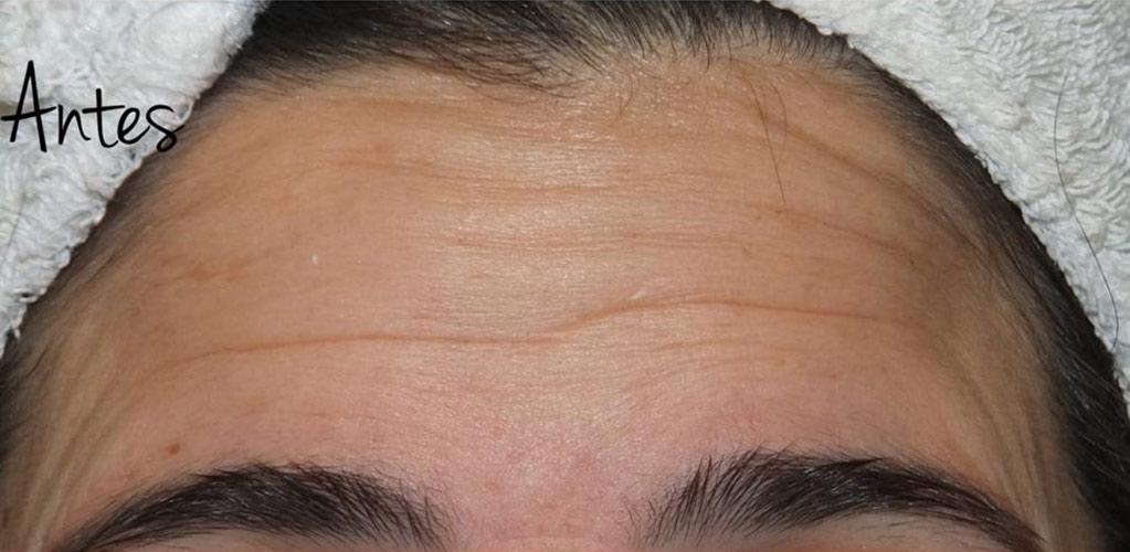 botox-hialuronico-4-antes