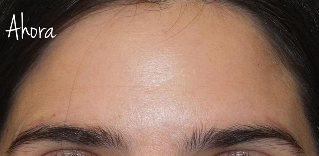 botox-hialuronico-4-despues