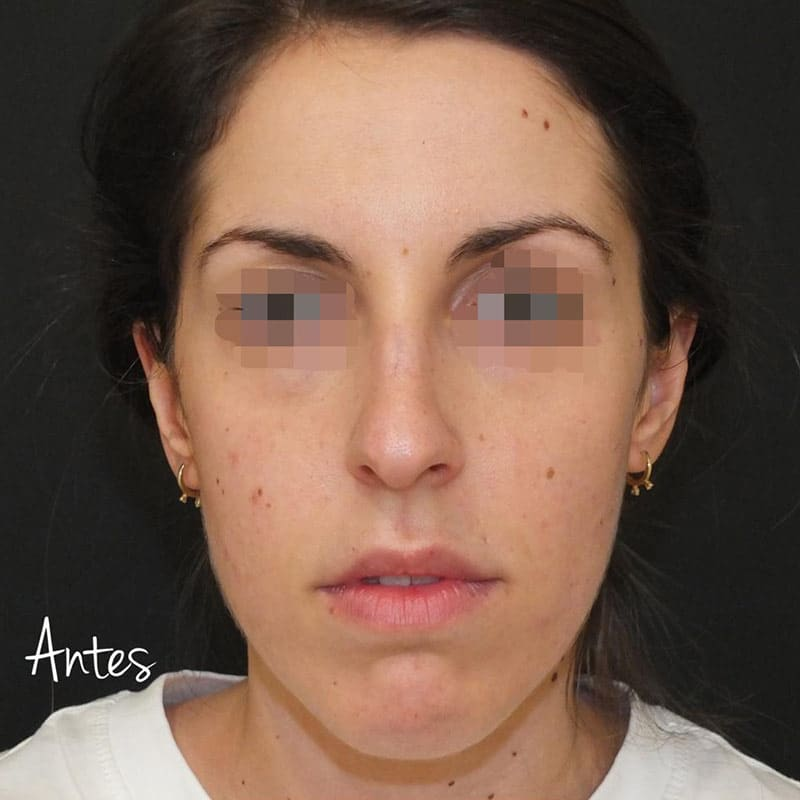 full-face-1-antes