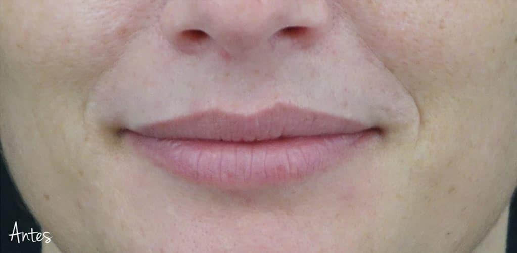 labios-10-antes