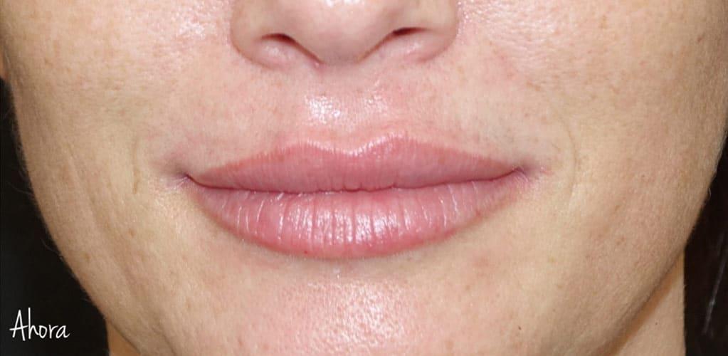 labios-10-despues