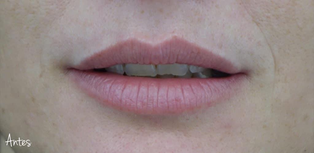 labios-12-antes