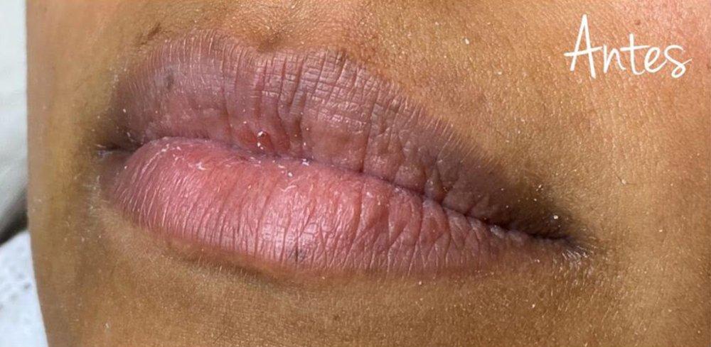 labios-13-antes