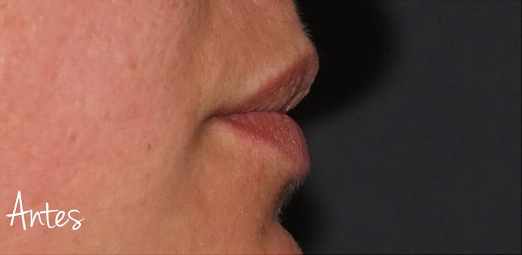 labios-5-antes