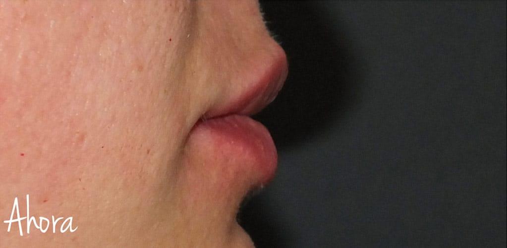 labios-5-despues