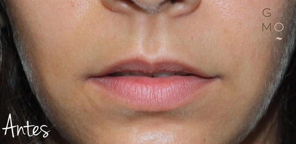 labios-6-antes
