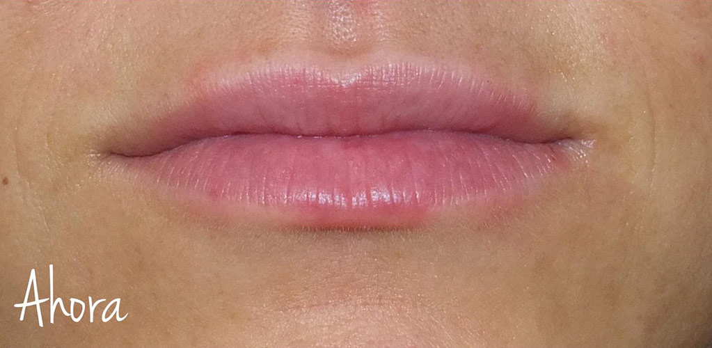 labios-8-antes