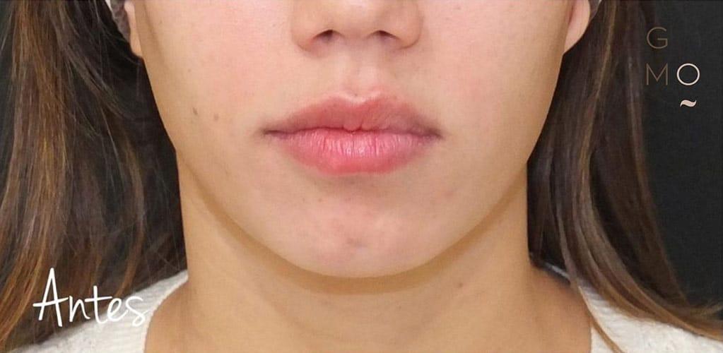 ovalo-facial-1-antes