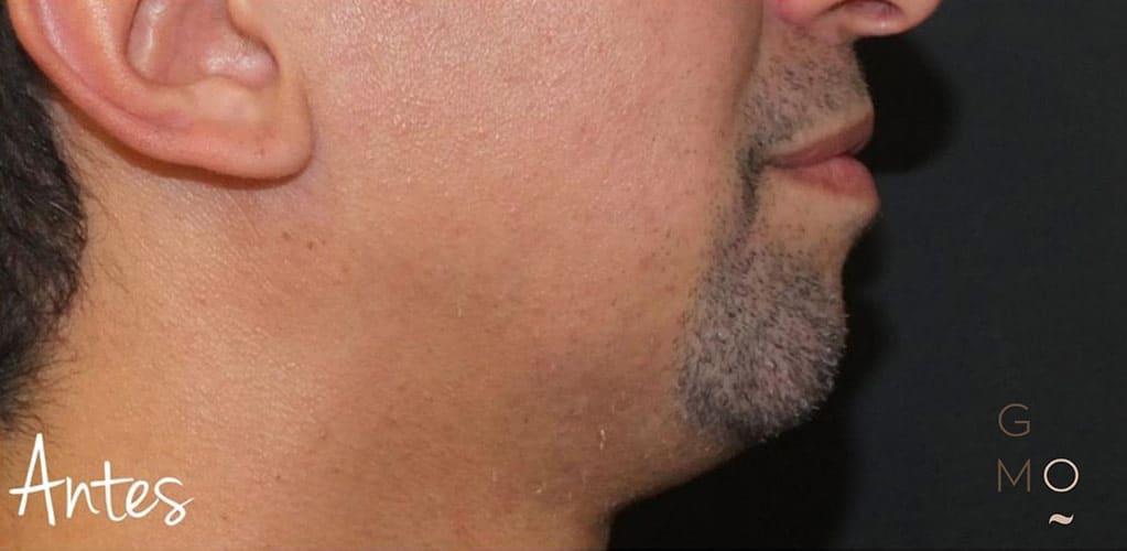 ovalo-facial-4-antes
