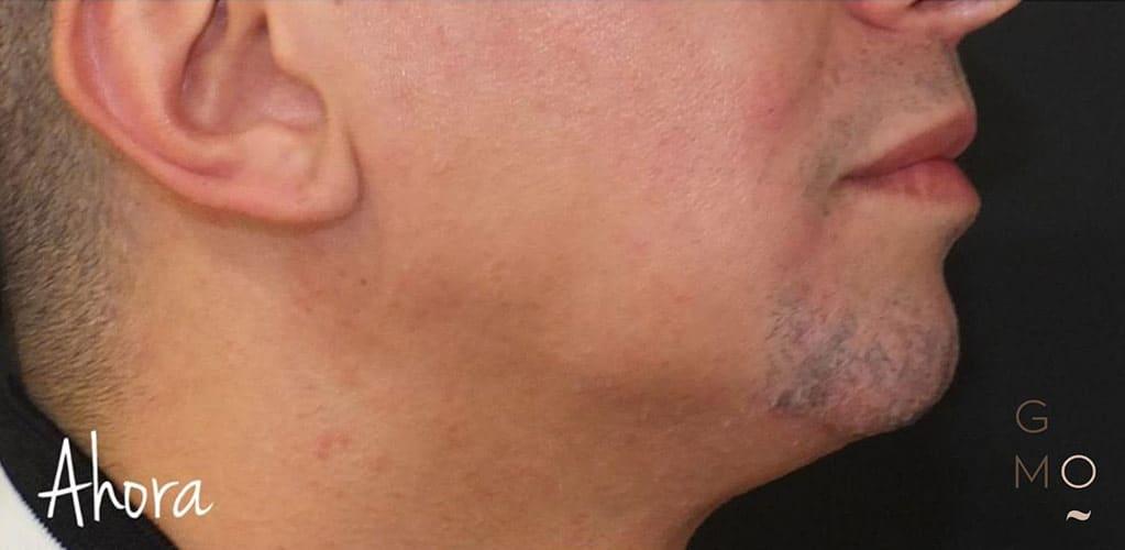 ovalo-facial-4-despues
