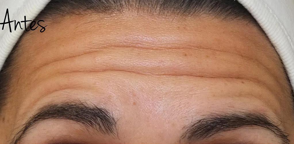 botox-hialuronico-2-antes