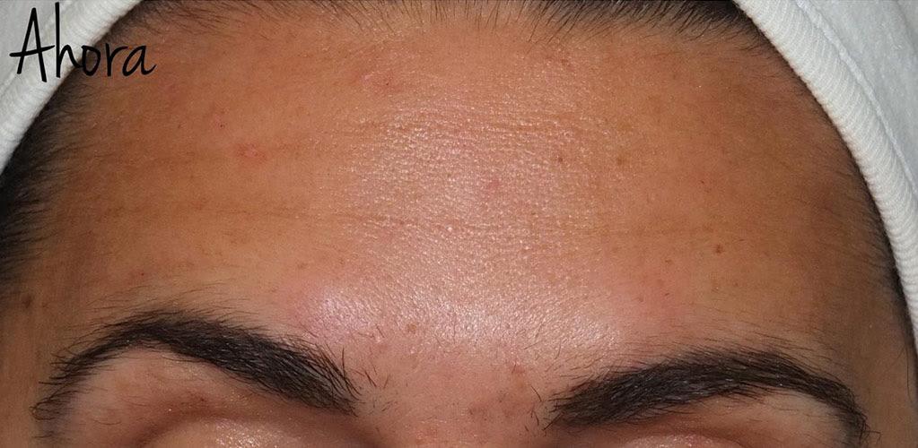 botox-hialuronico-2-despues